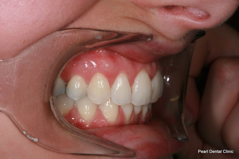 After Invisalign/ Whitening - Right Upper/bottom full arch teeth