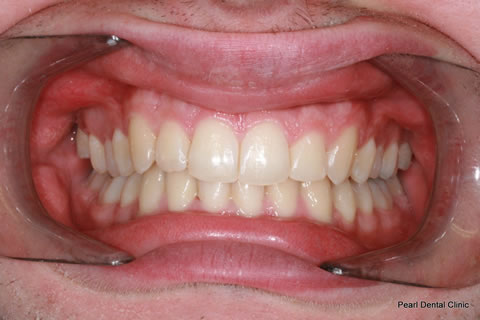 Teeth Invisalign/ Whitening Before After  - Full arch upper/lower teeth