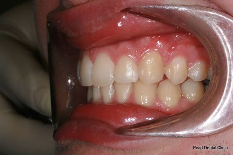 Teeth Invisalign/ Whitening Before After  - Left full arch upper/lower teeth