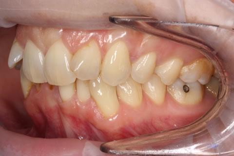 Invisalign Gallery 7 By Invisalign Dentist Amp Orthodontist
