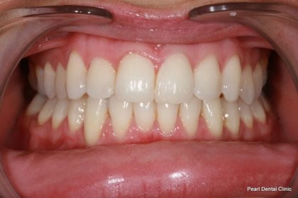 Invisalign Before After - Full upper/bottom arch teeth