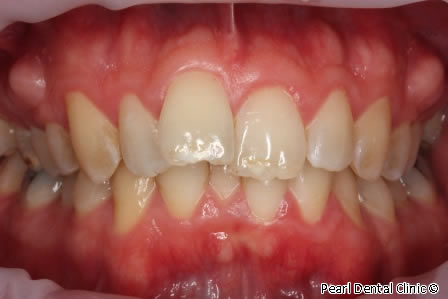 Invisalign Before After / Zoom Whitening - Full upper/bottom arch teeth
