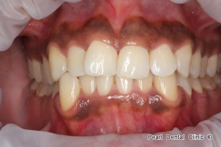 Invisalign Before After  Anterior - Full upper/lower arch teeth