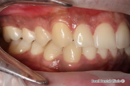 After Anterior Invisalign - Right full upper/lower arch teeth