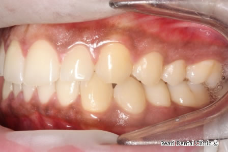 After Anterior Invisalign - Left full upper/lower arch teeth