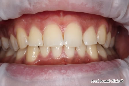 Before Anterior Invisalign - Full upper/lower arch teeth