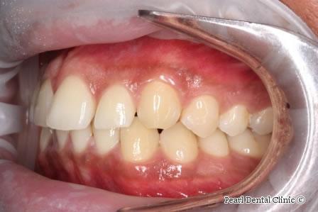 Before Anterior Invisalign - Left full upper/lower arch teeth