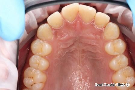 Before Anterior Invisalign - Upper arch teeth