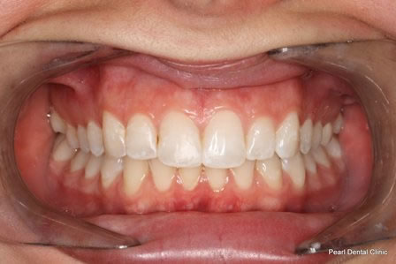 Invisalign Before After - Top/bottom arch teeth