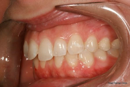 Invisalign Before After - Left top/bottom arch teeth