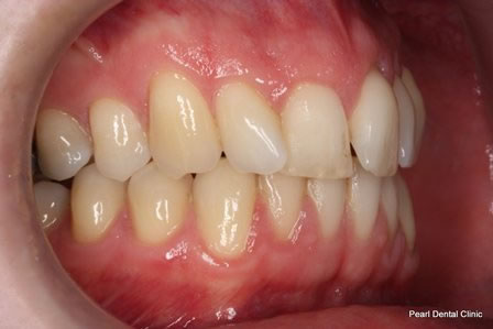 Invisalign Before After - Right upper/lower arch teeth