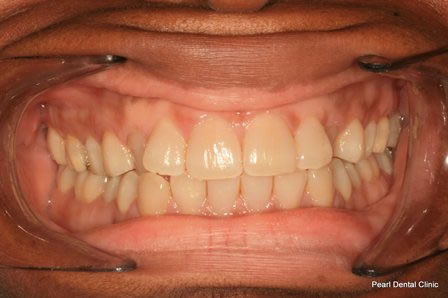 Invisalign Before After - Upper/lower arch teeth