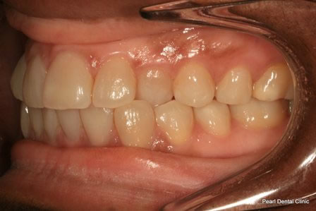 Invisalign Before After - Left upper/lower arch teeth