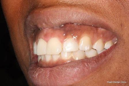 Invisalign Before After - Left full upper/bottom arch teeth