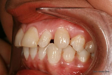 Invisalign Before After - Left full upper/bottom arch teeth .