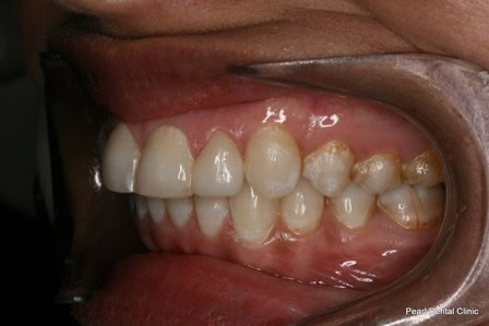 Invisalign Before After - Left full upper/bottom arch teeth