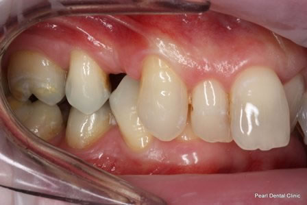 Invisalign Before After - Right full upper/bottom arch teeth