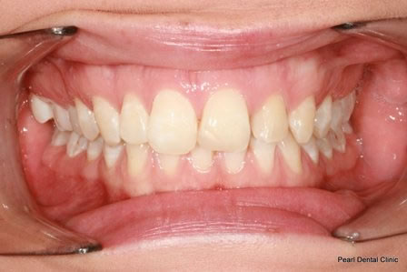 Invisalign Before After - Top/Bottom full arch teeth