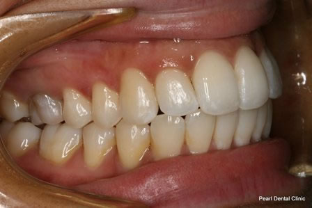 Invisalign Before After - Right top/Bottom full arch teeth