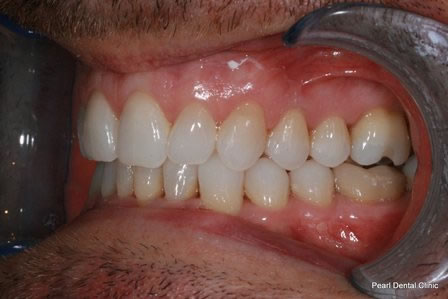 Invisalign Before After - Left top/Bottom full arch teeth