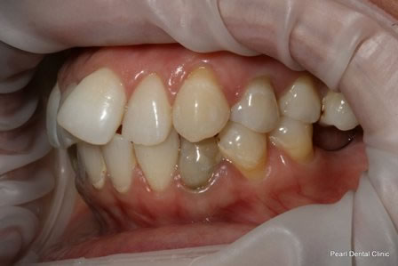 Invisalign Before After - Left full upper/lower arch teeth