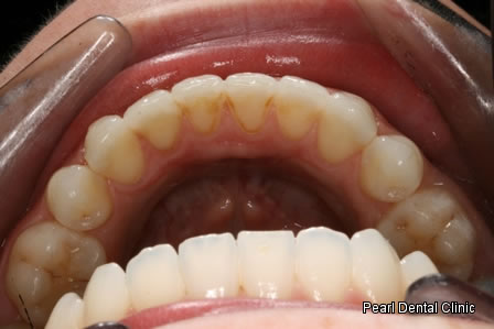 Invisalign Before After - Bottom arch teeth