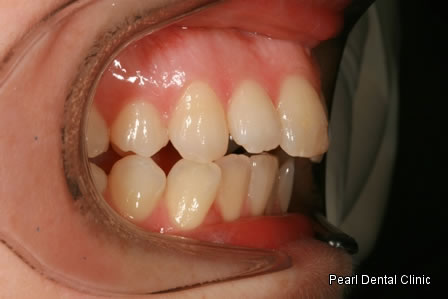 Invisalign Before After - Right full upper/lower arch teeth