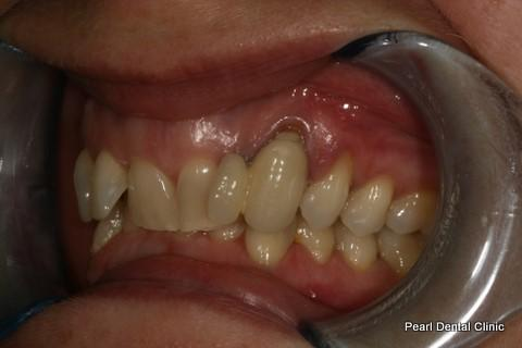 Invisalign Before After - Full upper/lower arches left side teeth
