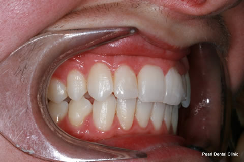 Invisalign Before After - Full top/bottom arches right side teeth