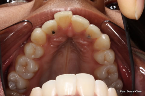 Invisalign Before After - Full top arch teeth