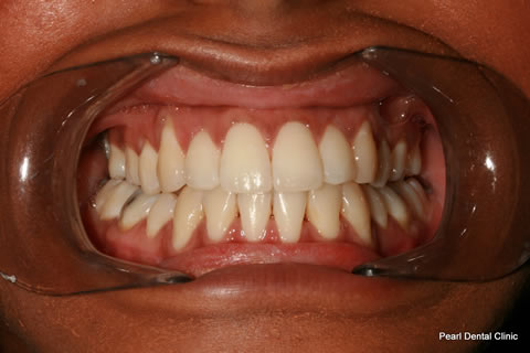 Invisalign Before After - Full top/bottom arch teeth