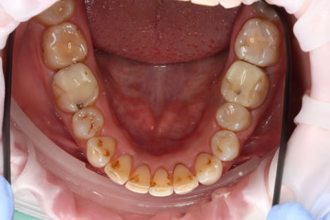 Invisalign Before After - Full lower arch teeth