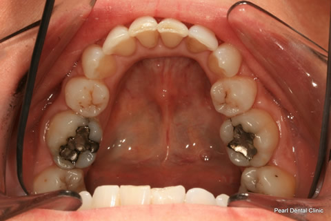 Invisalign Before After - Full bottom arch teeth