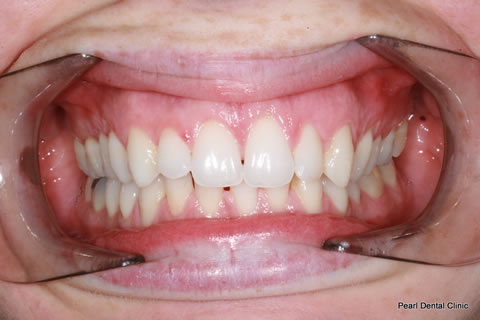Invisalign Before After - Full upper/lower arches teeth