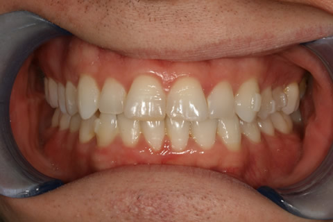 Invisalign Before After - Full top/bottom arches teeth