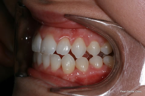 Invisalign Before After - Full top/bottom arches left side teeth