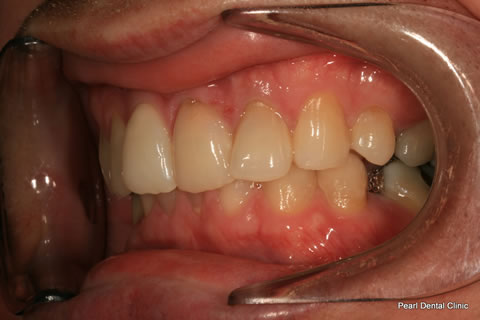 Invisalign Before After - Left full upper/lower arches
