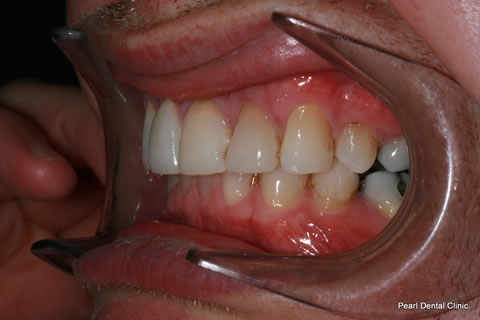 Invisalign Before After - Left full upper/lower arches teeth