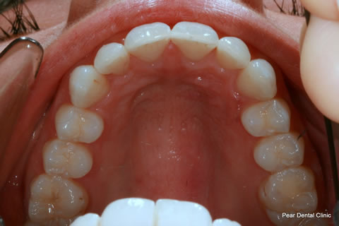 Invisalign Before After - Full upper arch teeth