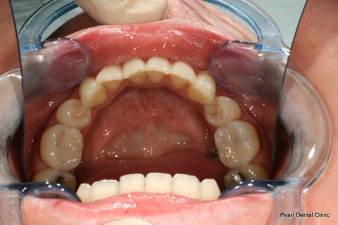 Invisalign Before After Anterior - Full lower arch
