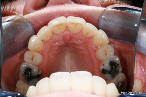 Invisalign Before After Anterior - Full upper arch