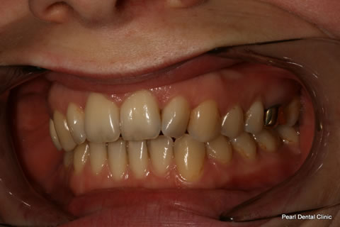 Invisalign Before After Anterior - Left full upper/lower arches