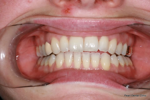 Invisalign Before After Anterior - Full upper/lower arches teeth
