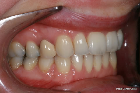 Invisalign Before After Anterior - Right full upper/lower arches