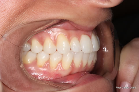 Invisalign Before After - Full upper/lower arches right side teeth