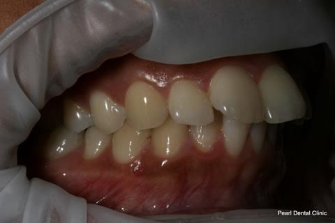 Before Teeth Invisalign/ Whitening - Right full upper/lower arch teeth
