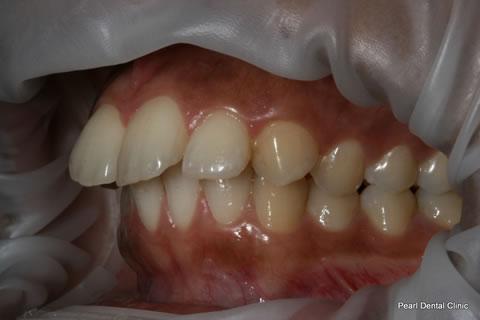 Before Teeth Invisalign/ Whitening - Left full upper/lower arch teeth
