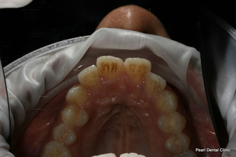 Before Teeth Invisalign/ Whitening - Upper arch teeth