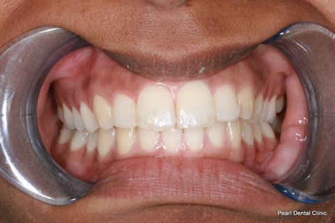 After Teeth Invisalign/ Whitening - Full upper/lower arch teeth