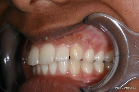 After Teeth Invisalign/ Whitening - Left full upper/lower arch teeth